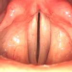 Simmetria delle corde vocali e del vestibolo laringeo (foto F. Fussi)